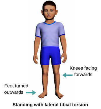 Stand-lat-tibial-torsion.jpg